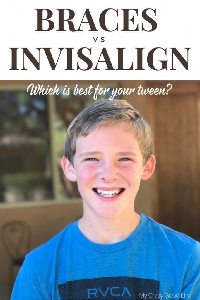 Invisalign vs Braces–which is better for your tween? I'm sharing our favorite things about Invisalign and why we love it for our tween!