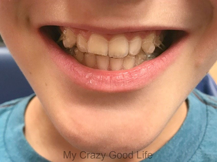 Invisalign vs Braces–which is better for your tween? Though the answer to the question is dependent on your family, I'm sharing our favorite things about Invisalign!