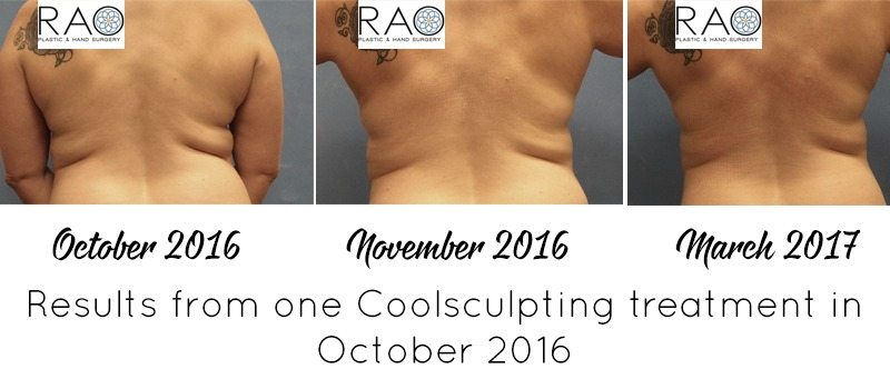 Thinking about trying CoolSculpting to target fat loss and tone up? I reviewed the process and am sharing my story and CoolSculpting results today!